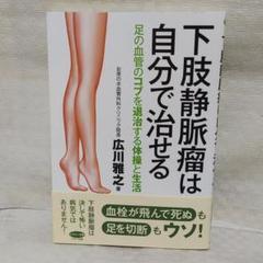で 瘤 自分 下肢 治す 静脈
