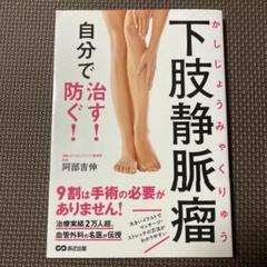 静脈 で 下肢 治す 自分 瘤