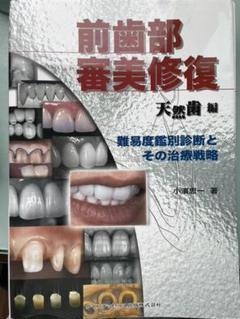 "Thumbnail of ""裁断済み 前歯部審美修復 天然歯編"""