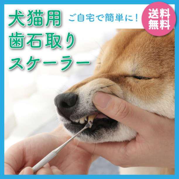 自宅 歯石 取り